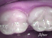 fillings-after